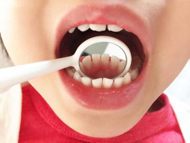口内炎の原因は風邪?意外と深い関係性とは